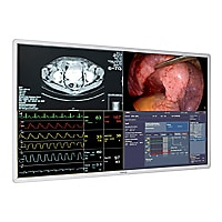 "BARCO 55"" MDSC-8255 4K UHD LED SURGICAL DISPLAY W/ SEALED PROTECTIVE GLASS"