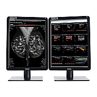 Barco Nio Color 5MP MDNC-6121 - LED monitor - 2 x 5.8MP - color - 21.3""