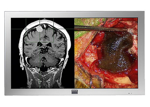 HP Barco MDSC-2242 Full HD Large Screen Surgical Display