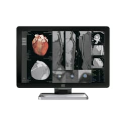 HP Barco Coronis Fusion 6MP LED MXRT-5600 Medical Display System